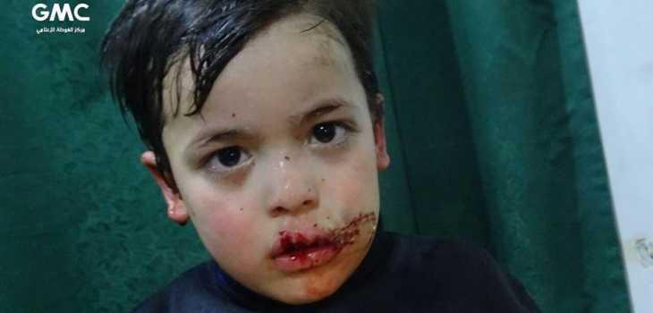 ووتش: 400 قتيل في الغوطة خلال أربعة أيام