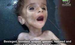 علمت بالحصار قبل أشهر: الأمم المتحدة متواطئة مع نظام دمشق في جريمة تجويع مضايا