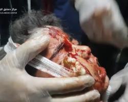 المجزرة الأشنع: غارة روسية تبيد تجمعاً للمدنيين في كفربطنا بريف دمشق