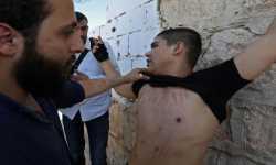 شهادات ناجين... أساليب التعذيب في سجون النظام السوري