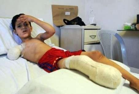 طفل سوري: لقد حرمتني من ذراعي وساقي يا بشار، هل يكفي ذلك