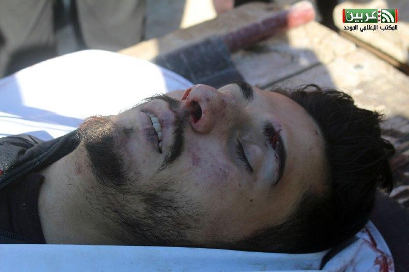 مقتل مراسل قناة الجسر وإصابة المصور بالقصف  العنيف على الغوطة الشرقية