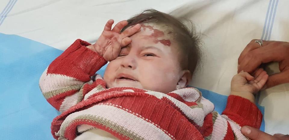 ضحايا أطفال جرّاء قصف صاروخي وعنقودي على ريف إدلب