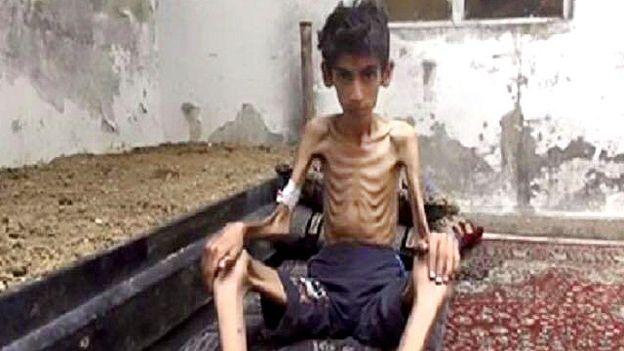 مضايا التي تموت جوعاً بصمت؟!