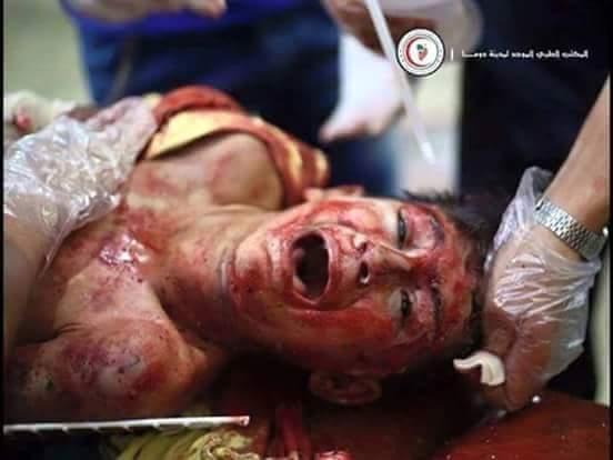 حكاية الألم السوري بين النظام وداعش. هل من نهاية؟