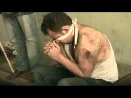 محقق بالأمم المتحدة: التعذيب يزداد خطورة في سوريا (وثائق عن ضرب مصابين بمستشفيات عسكرية)