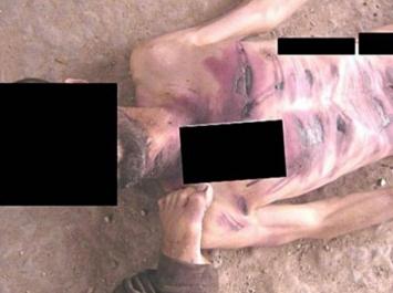 أفظع أسلوب للتعذيب في سجون النظام: تقطيع أجساد المعتقلين و حرقها بـ(آلة اللحام)