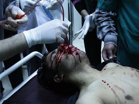 حلب.. أنقاض مدينة يلفها اليأس