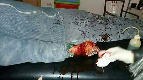 7 جرحى من المدنيين جراء قصف لقوات النظام على بلدتي مضايا وبقين