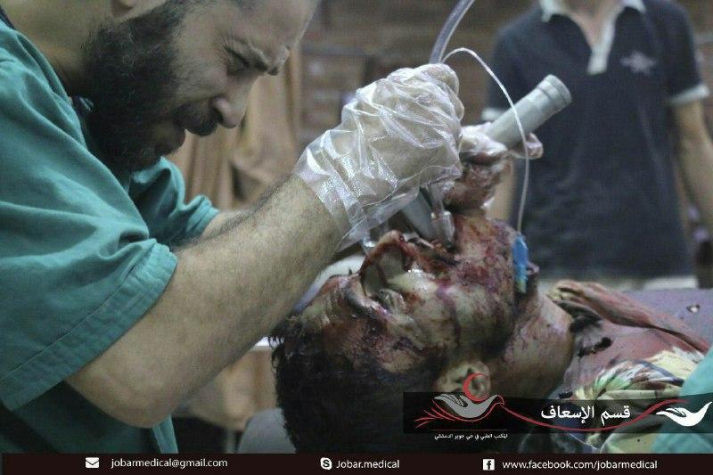 قصف مكثف على بلدات ريف دمشق، والثوار يردون باستهداف مواقع قوات الأسد