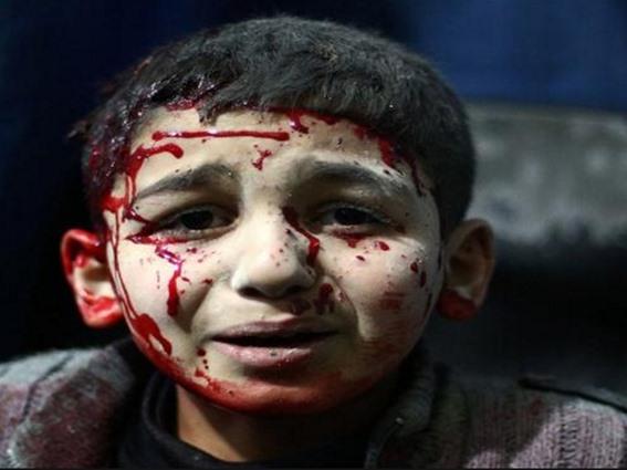 49 قتيلاً -تقبلهم الله في الشهداء- حصيلة ضحايا قصف الطيران الروسي الأسدي يوم أمس الجمعة
