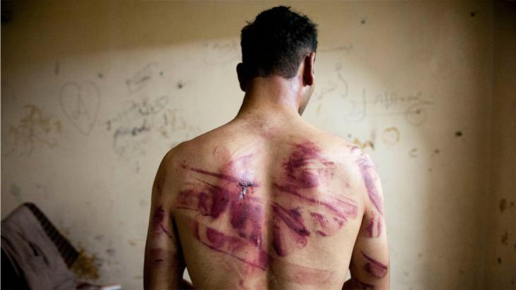 معتقل سابق يكشف عن وسيلة تعذيب جديدة في سجون الأسد